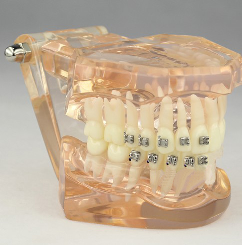 Dental Orthodontic Model with Brackets M3009