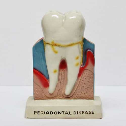 Dentist Dental Teeth Oral Anatomy Teaching Standing Decoration Model Figure